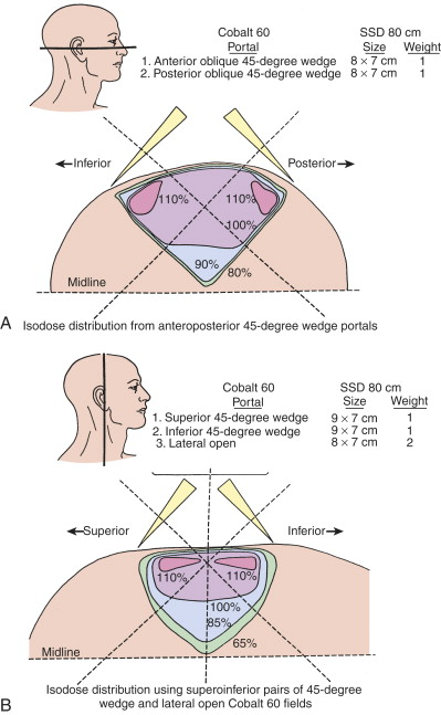 Temporal Bone - an overview | ScienceDirect Topics