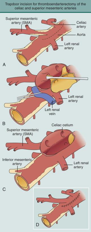 Mesenteric Artery - an overview | ScienceDirect Topics