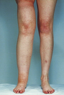 Lymphedema - an overview | ScienceDirect Topics