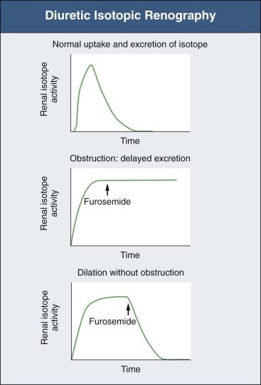 what is diuretic renography