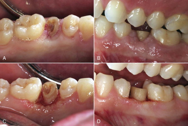 Crown Lengthening - an overview | ScienceDirect Topics