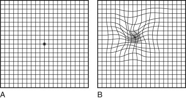 Amsler grid an overview sciencedirect topics