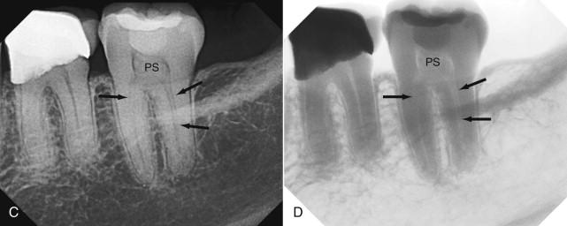 oral amp maxillofacial radiology today