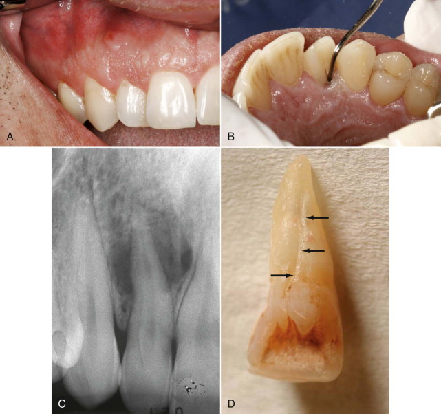 Maxillary Lateral Incisor An Overview Sciencedirect Topics