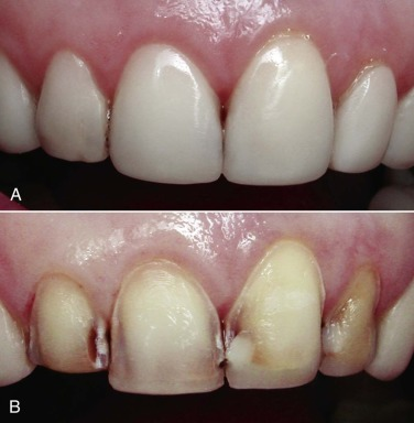 Restorative Dentistry - an overview | ScienceDirect Topics
