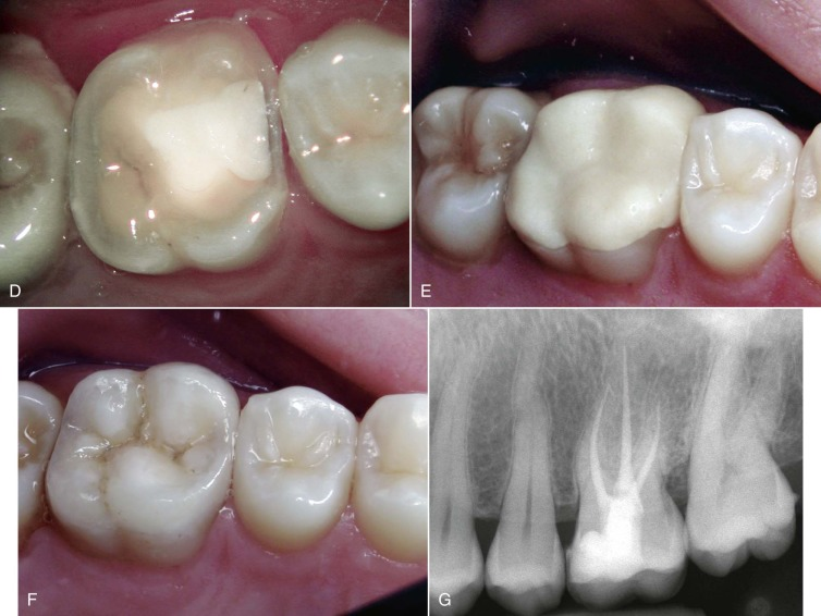 Conservative Dentistry - an overview | ScienceDirect Topics
