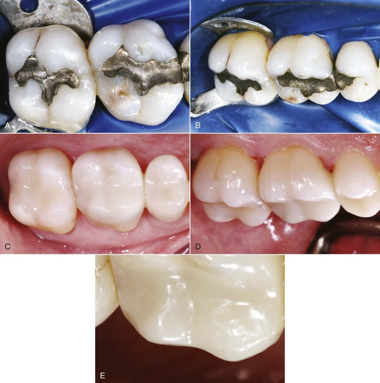 Esthetic Dentistry - an overview | ScienceDirect Topics
