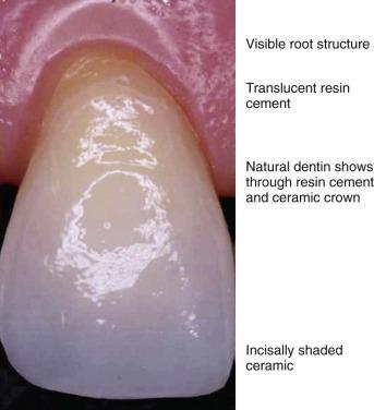 Dental Restoration - an overview | ScienceDirect Topics