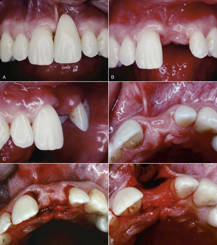 Periodontic Surgery - an overview | ScienceDirect Topics