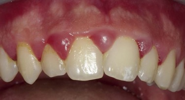 Gingival Graft - an overview | ScienceDirect Topics
