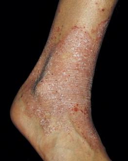 Dermatitis - an overview   ScienceDirect Topics