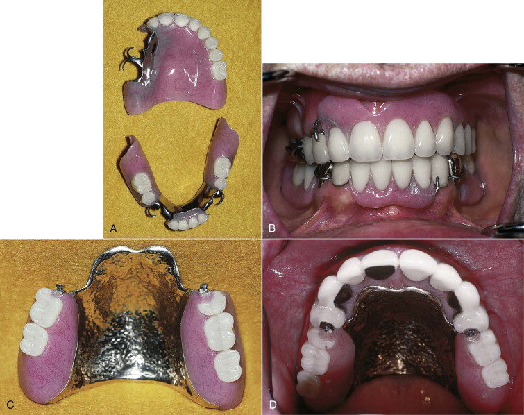 Removable Partial Denture - an overview | ScienceDirect Topics