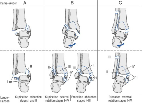 Fibula Fracture - an overview | ScienceDirect Topics