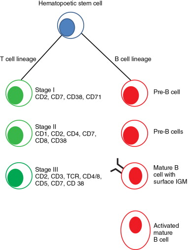 Undifferentiated Lymphoma - an overview | ScienceDirect Topics