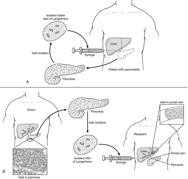 Pancreatectomy