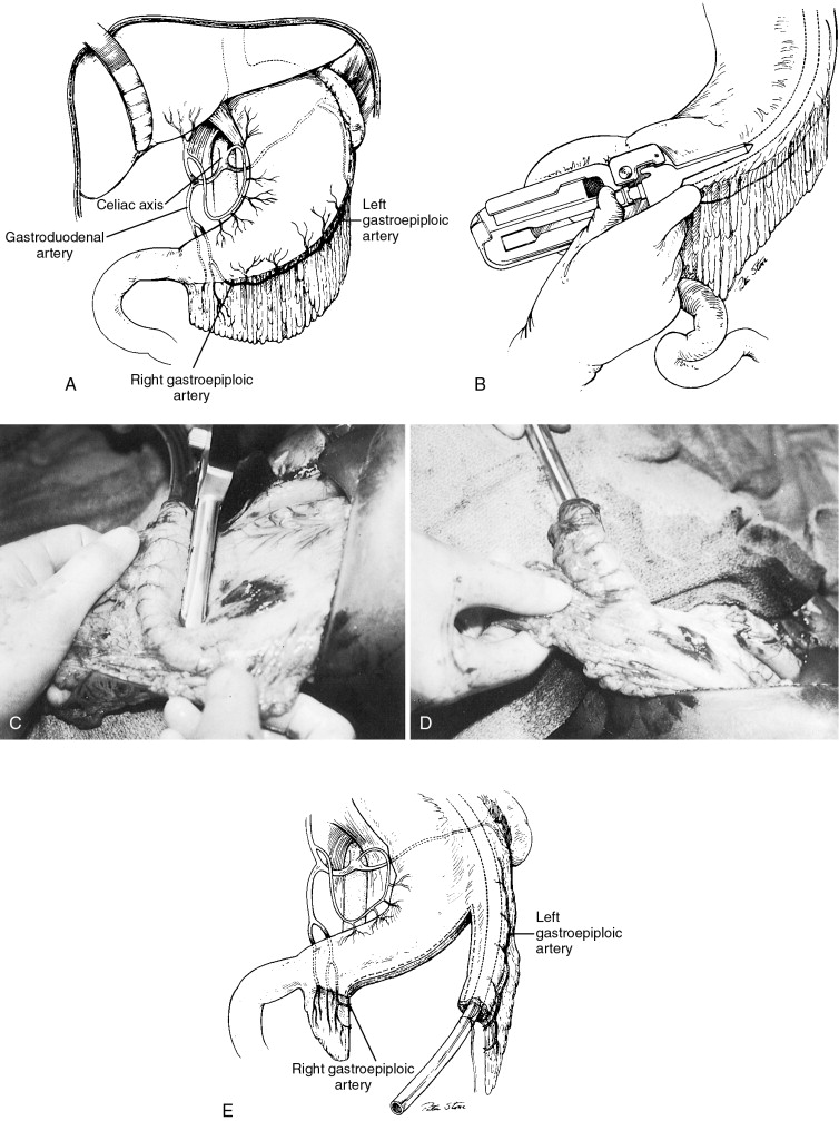 Gastroepiploic Artery An Overview Sciencedirect Topics