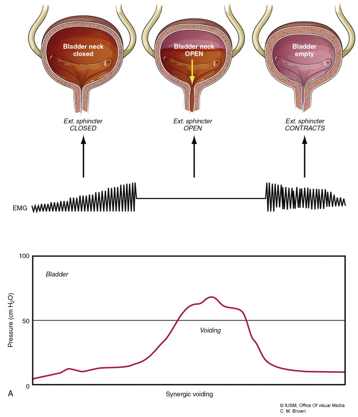 Bladder Pathology - an overview | ScienceDirect Topics