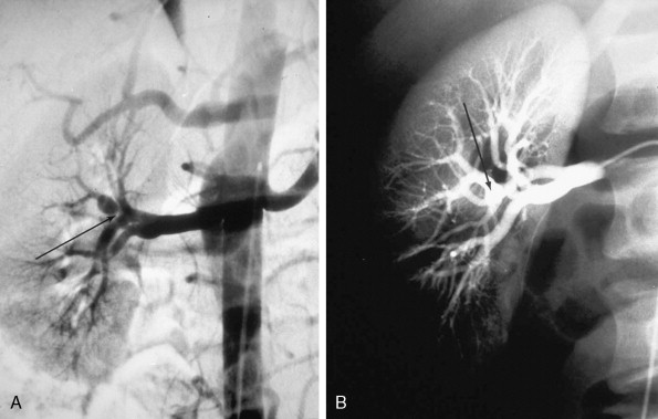 Median Arcuate Ligament Syndrome - an overview