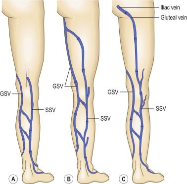 Superficial Vein An Overview Sciencedirect Topics