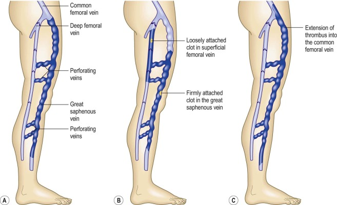 superficial thrombophlebitis an overview sciencedirect topics