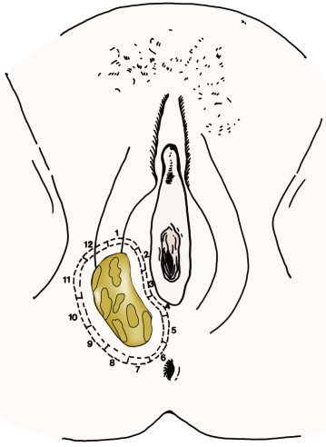 basic skin anatomy wiring diagram database Labeled Skin Diagram vulva tumor an overview sciencedirect topics anatomy of skin structure basic skin anatomy