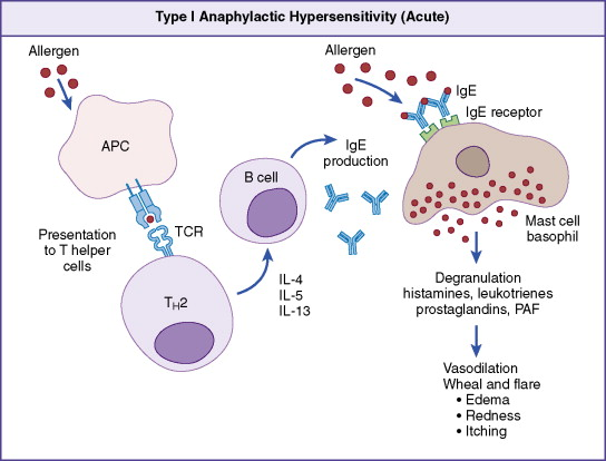 Type I Hypersensitivity - an overview   ScienceDirect Topics