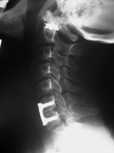 Anterior Cervical Discectomy And Fusion An Overview