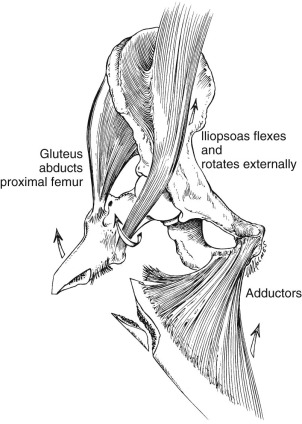 Femur Subtrochanteric Fracture