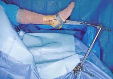 Ankle Arthroscopy - an overview | ScienceDirect Topics