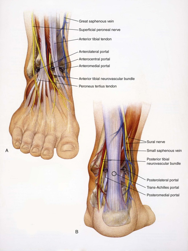 Ankle Arthroscopy An Overview Sciencedirect Topics