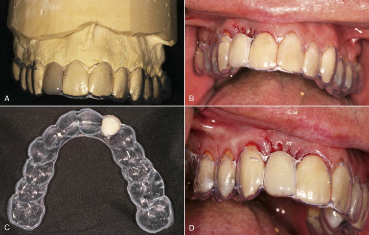 Resin-Bonded Fixed Partial Denture - an overview
