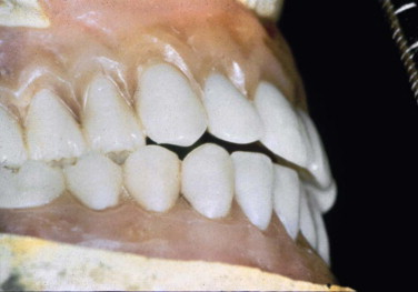 Maxillary Prosthesis - an overview | ScienceDirect Topics