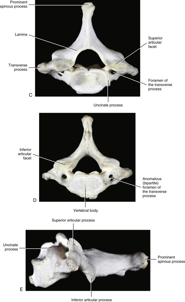 Seventh Cervical Vertebra An Overview Sciencedirect Topics