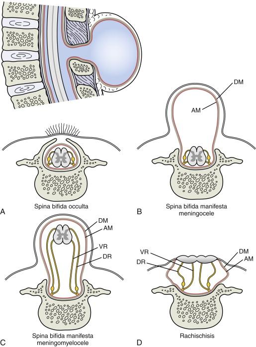 Spina bifida - an overview | ScienceDirect Topics