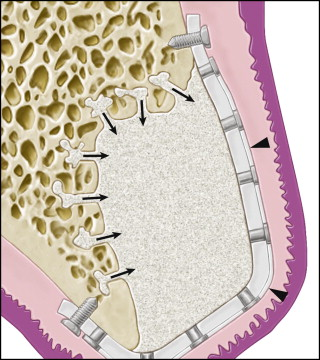 Tissue Regeneration - an overview   ScienceDirect Topics