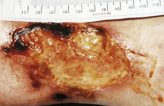 Wound Care - an overview | ScienceDirect Topics