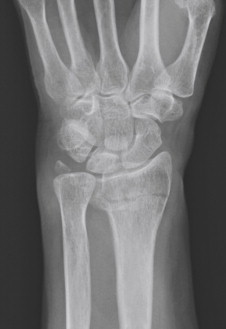 Wrist Fracture - an overview | ScienceDirect Topics
