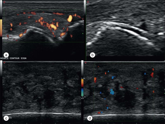 Muscle Hematoma - an overview | ScienceDirect Topics
