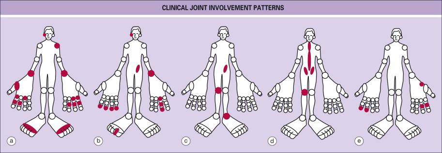 what is chronic arthritis