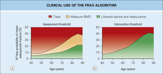FRAX - an overview | ScienceDirect Topics