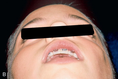 Facial Implant - an overview | ScienceDirect Topics