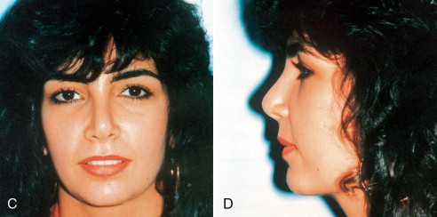 Nose Surgery - an overview | ScienceDirect Topics
