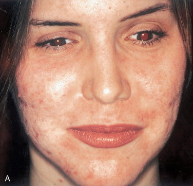 Skin Resurfacing - an overview | ScienceDirect Topics