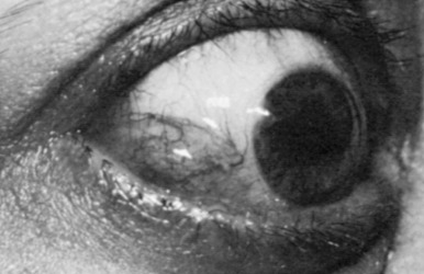 Eyelid Inflammation - an overview | ScienceDirect Topics