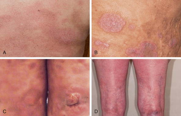 Mycosis fungoides - an overview | ScienceDirect Topics