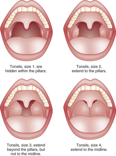 Tonsil - an overview | ScienceDirect Topics