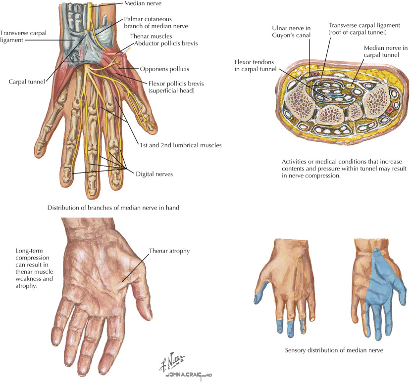 Carpal Tunnel An Overview Sciencedirect Topics