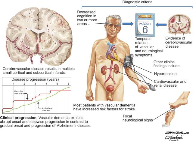 Vascular Dementia - an overview | ScienceDirect Topics