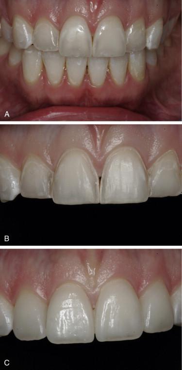 Dental Bonding - an overview | ScienceDirect Topics