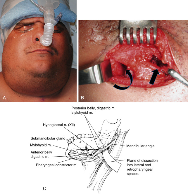 Incision and Drainage - an overview | ScienceDirect Topics